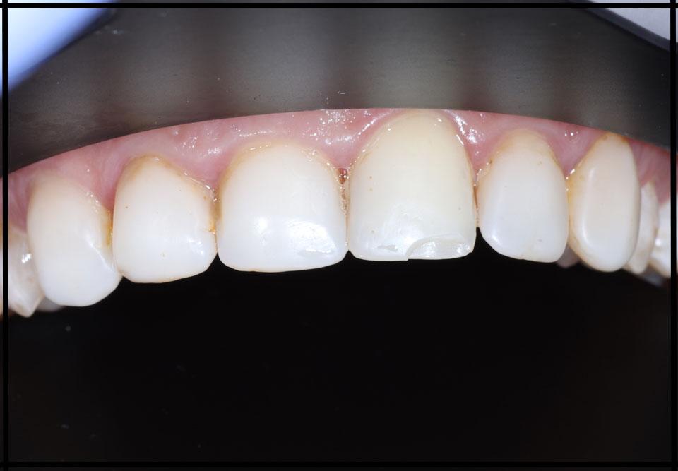 """фото до. Установка керамічних вінірів. Стоматолог - Данилів Ю.І. (Фото - """"до / після"""")"""