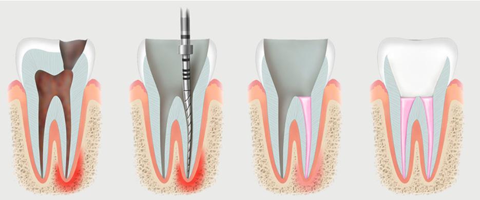 Етапи лікування кореневих каналів