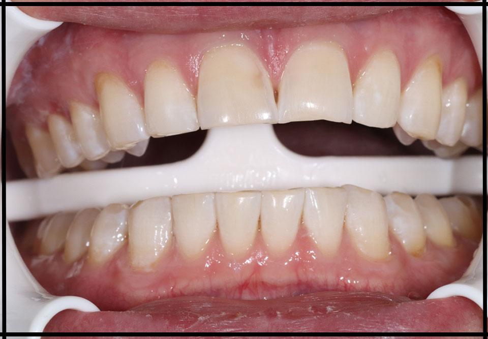"Отбеливание зубов. Стоматолог - Самышкина М. А. (фото - ""до/после"")"