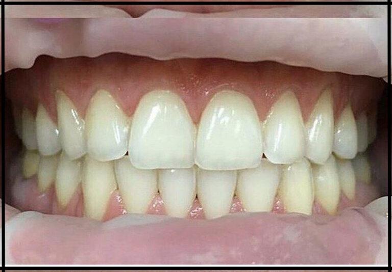 """Отбеливание зубов. Стоматолог - Иовица А. О. (фото - """"до/после"""")"""