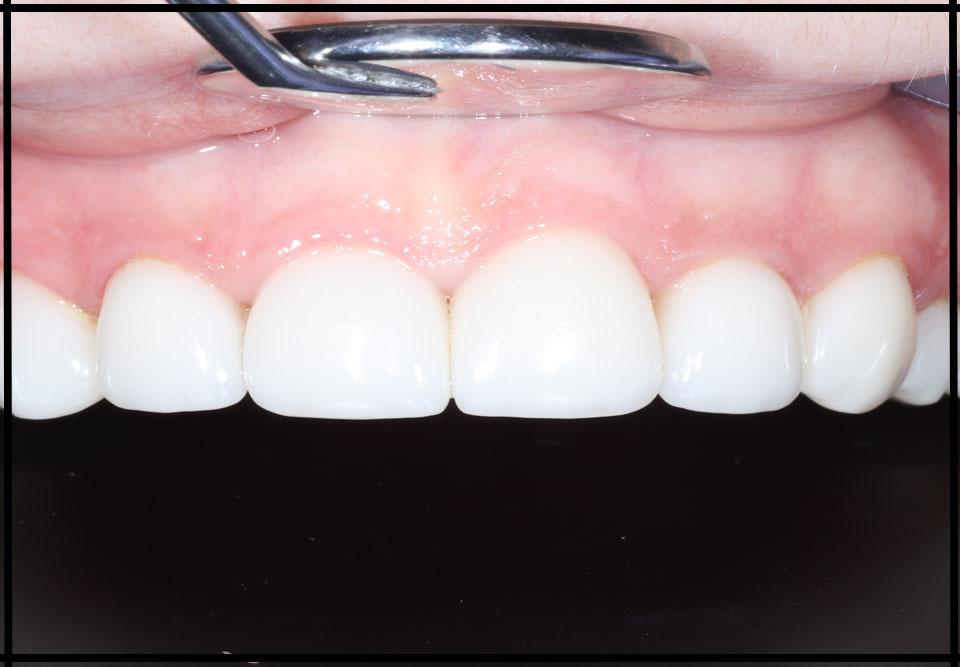 """Установка керамічних вінірів. Стоматолог - Данилів Ю.І. (Фото - """"до / після"""")"""