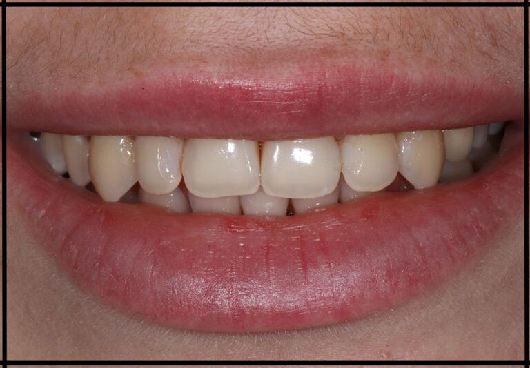 "фото до. Отбеливание зубов. Стоматолог - Самышкина М. А. (фото - ""до/после"")"