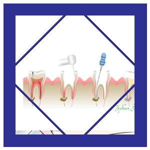 Лечение зубов Ирпене