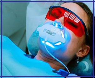 Отбеливание зубов Ирпень