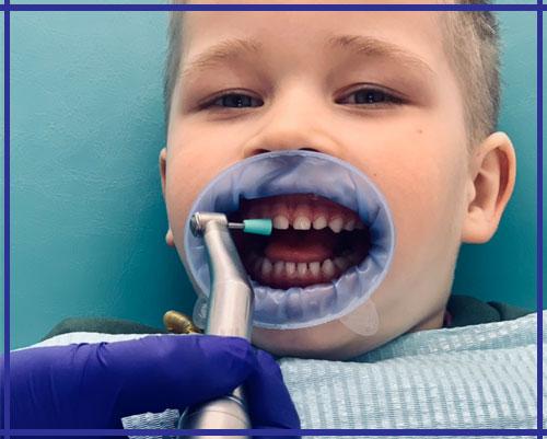 Детская чистка зубов Ирпень