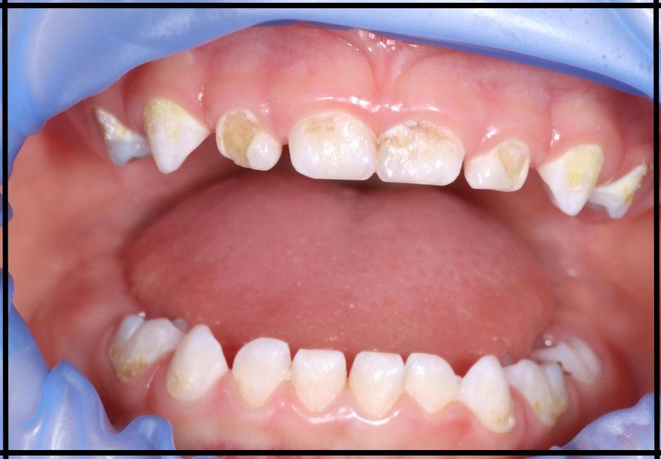 """Фото """"до"""". Лікування зубів уві сні дитині 1 рік 10 місяців. Стоматолог – Самишкіна М. А."""