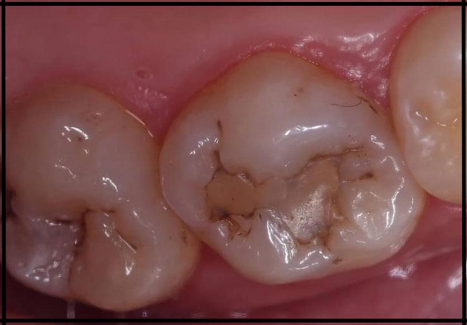 """Фото """"до"""". Лікування карієсу під мікроскопом. Стоматолог - Чаплик Т. В."""