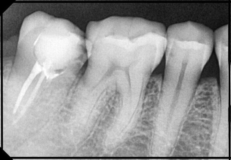 """Фото """"до"""". Лікування зубів під мікроскопом (рентген знімок). Стоматолог - Чаплик Т. В."""