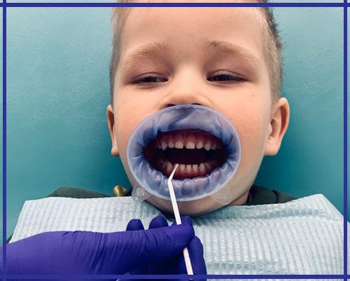 Фторирование зубов Ирпень