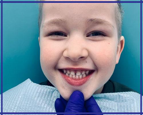Лечение молочных зубов Ирпень