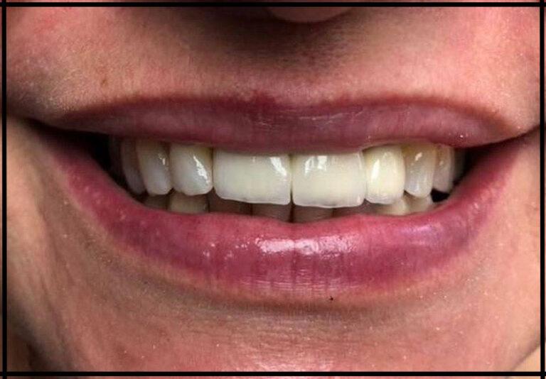 Імплантація та протезування на імплантатах. Стоматолог - Данилів Ю.І.