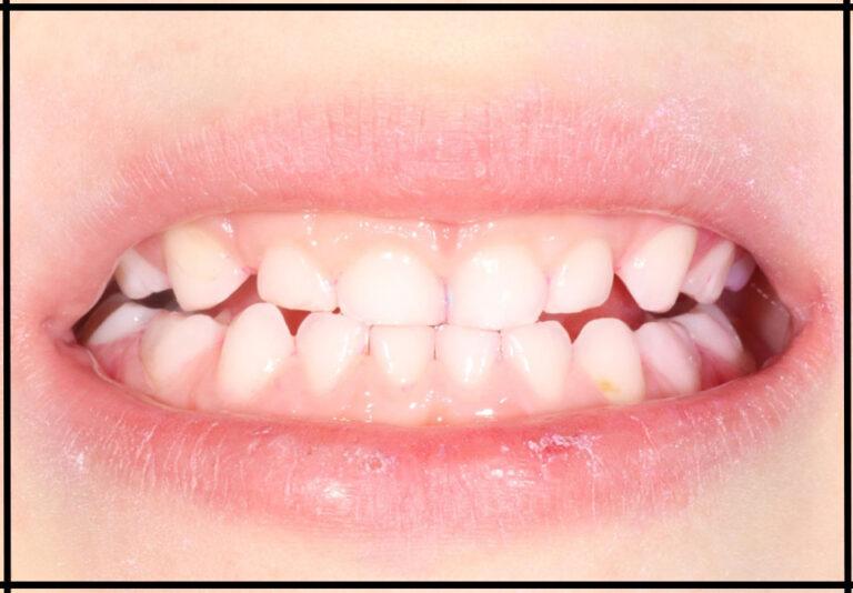 Детская чистка зубов после нанесения индикатора налёта. Стоматолог - Самышкина М.А.