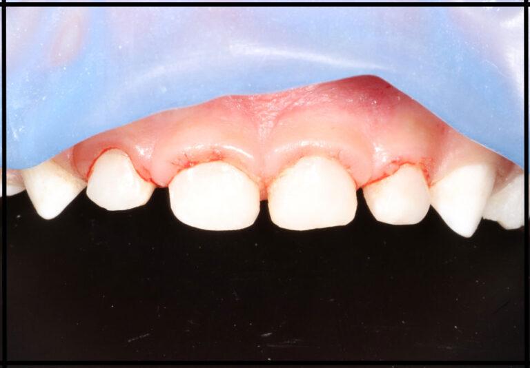 Лечение зубов ребенку во сне. Стоматолог - Самышкина М. А.