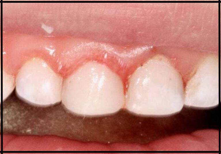 Лікування зубів уві сні дитині. Стоматолог – Самишкіна М. О.