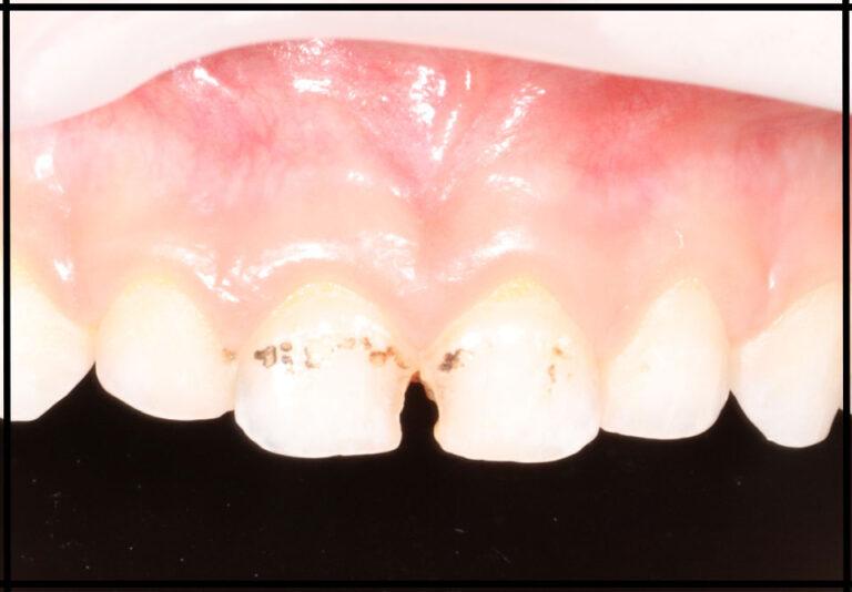 """Фото """"до"""" Лікування зубів уві сні дитині. Стоматолог – Самишкіна М. О."""