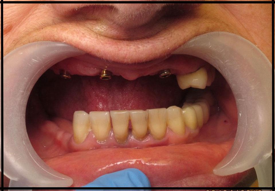 """Фото """"до"""". Імплантація та протезування на імплантатах. Стоматолог - Данилів Ю.І."""