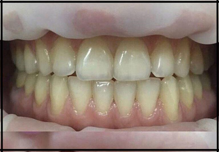 """Фото до. Отбеливание зубов. Стоматолог - Иовица А. О. (фото - """"до/после"""")"""