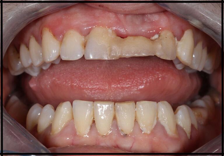 """Установка цирконієвих коронок. Стоматолог - Данилів Ю. І. (фото - """"до/после"""")"""