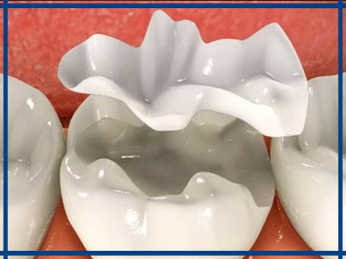 Керамічні вкладки Стоматологія Ірпінь