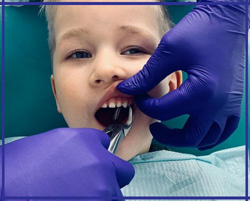 Удаление молочных зубов Ирпень