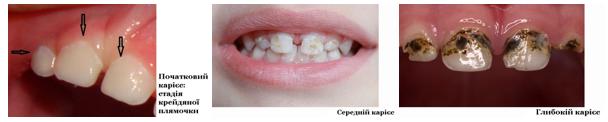 Молочні зуби лікування