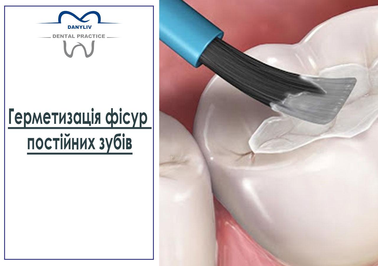 Герметизація фісур постійних зубів