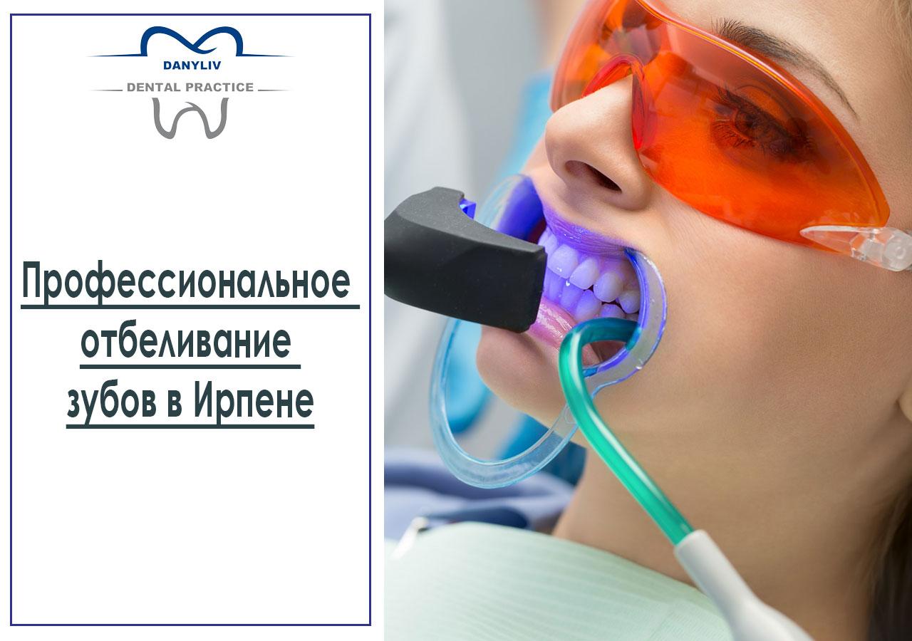 Профессиональное отбеливание зубов в Ирпене