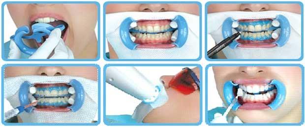 Професійне відбілювання зубів в Ірпені