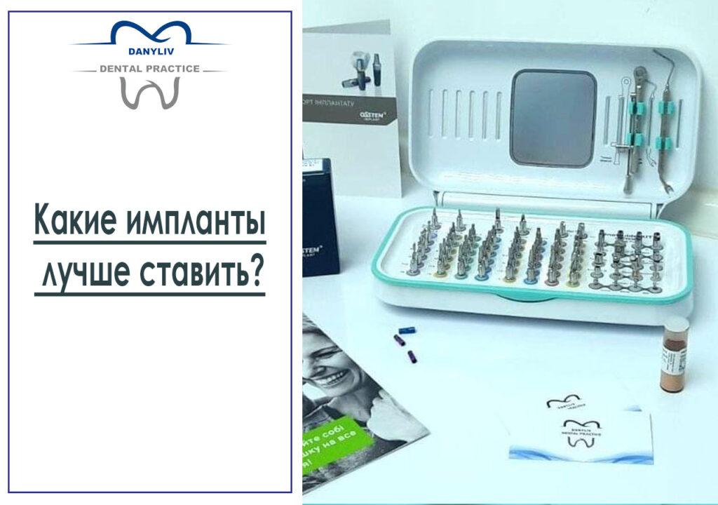 Какие импланты лучше ставить?